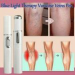 Blue-Light-Therapy-Pen-for-Varicose-Veins